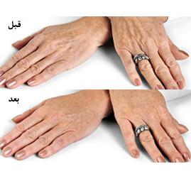دست 2 - آیا می توانیم انگشتان خود را جوان کنیم؟