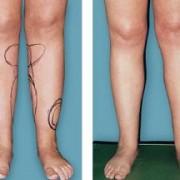 سااااااااق 300x216 1 180x180 - چگونه ساق پای زیبا و متناسب داشته باشیم؟