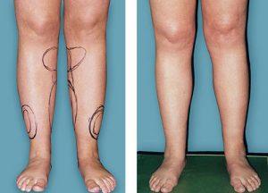 چگونه ساق پای زیبا و متناسب داشته باشیم؟