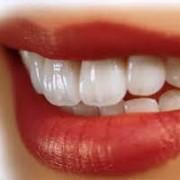 سفید 1 180x180 - قدم هایی که ما را به سفید کردن طبیعی دندان ها نزدیک می کند