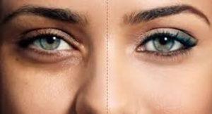 جوان سازی خانگی پوست با قرص های گیلیکولیک اسید