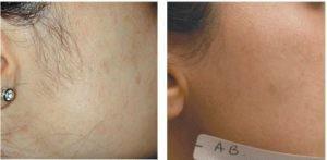 لیزر پوست 300x147 1 300x147 - پوست بهتر با دستگاه لیزر بهتر