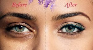درمان سیاهی زیر چشم از طریق کربوکسی تراپی