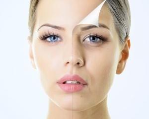 Botox 1 300x300 1 300x240 - بوتاکس کردن یا نکردن، مسئله این است!
