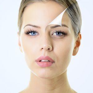 Botox 1 300x300 1 - بوتاکس کردن یا نکردن، مسئله این است!