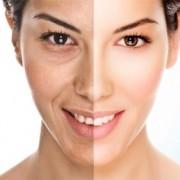 Carboxy Gel Face 300x281 1 180x180 - مناطقی از بدن که با کربوکسی تراپی قابل درمان هستند