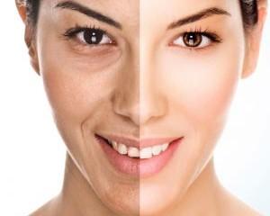 Carboxy Gel Face 300x281 1 300x240 - مناطقی از بدن که با کربوکسی تراپی قابل درمان هستند