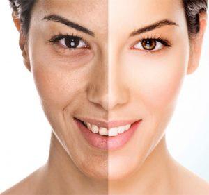 Carboxy Gel Face 300x281 1 - مناطقی از بدن که با کربوکسی تراپی قابل درمان هستند