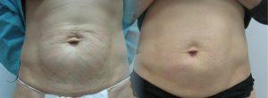 b609326a609326 300x110 - مناطقی از بدن که با کربوکسی تراپی قابل درمان هستند