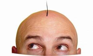 hair transplant1 300x181 1 300x181 - کاشت مو: سری انباشته از مو منتظر شماست