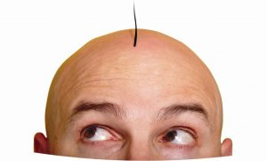hair transplant1 300x181 1 - کاشت مو: سری انباشته از مو منتظر شماست