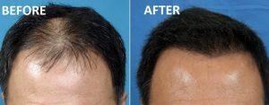 prp hair loss jaipur 300x117 - اعتماد به نفس از دست رفته ی خود را باز یابید