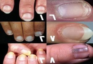 300x207 - شما درگیر کدام بیماری ناخن هستید؟