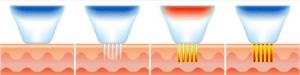 Capture 1 300x75 - لیزر RF فرکشنال و کاربردهای آن بر بدن