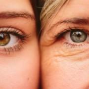DroopyEyesMomDaughter 650x450 300x208 1 180x180 - داشتن چشمانی گیرا با رفع افتادگی پلک چشم