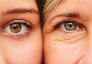 DroopyEyesMomDaughter 650x450 300x208 1 - داشتن چشمانی گیرا با رفع افتادگی پلک چشم