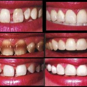 Veneers1 180x180 - دندانم را لمینت کنم یا نه؟