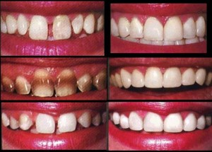 Veneers1 300x215 - دندانم را لمینت کنم یا نه؟