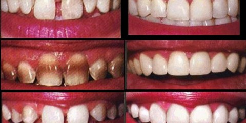 Veneers1 480x240 - دندانم را لمینت کنم یا نه؟