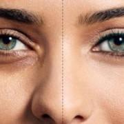 a08921023014102a 300x200 1 180x180 - با رفع پف زیر چشم تان، زیباتر شوید.