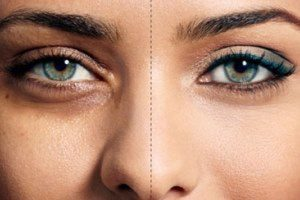 با رفع پف زیر چشم تان، زیباتر شوید.