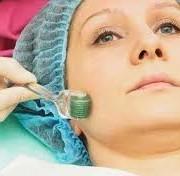 images 1 180x176 - میکرونیدلینگ طبیعی ترین و موثرترین روش جوانسازی و ترمیم پوست