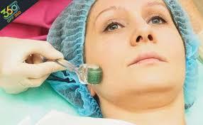 images 1 - میکرونیدلینگ طبیعی ترین و موثرترین روش جوانسازی و ترمیم پوست
