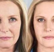 images 2 3 180x174 - جوانسازی پوست با روش های نوین