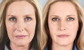 images 2 3 - جوانسازی پوست با روش های نوین