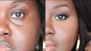 تزریق چربی: روشی برای پر کردن قسمت های خالی زیر چشم