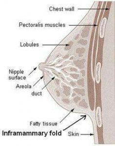 خط سینه ( infra-mammary fold)