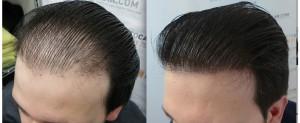 """بافت موی کاشته شده: """"بافت عجیب"""" مو پس از کاشت"""