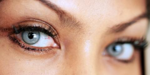 slider3 480x240 - عمل های بدون جراحی و روش جراحی چشم ( بلفاروپلاستی)