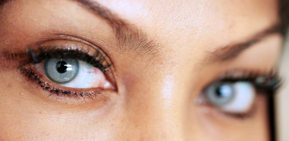 slider3 950x463 - عمل های بدون جراحی و روش جراحی چشم ( بلفاروپلاستی)
