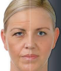 اسکارلت جدیدترین درمان در جوانسازی پوست