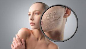 دللب 300x173 - با پوست خشک ام چه کنم! (2)