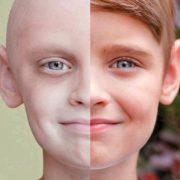 سرطان 410x362 180x180 - سرطان پوست : شایع ترین سرطان بدخیم بدن است!