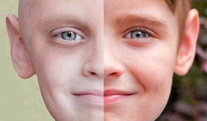 سرطان 410x362 410x240 - سرطان پوست : شایع ترین سرطان بدخیم بدن است!