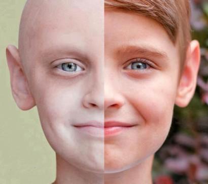 سرطان 410x362 - سرطان پوست : شایع ترین سرطان بدخیم بدن است!