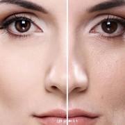 منافذ 180x180 - منافذ باز پوست خود را مدیریت کنیم !