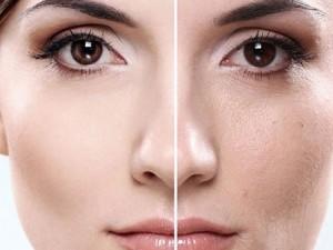 منافذ 300x225 - منافذ باز پوست خود را مدیریت کنیم !
