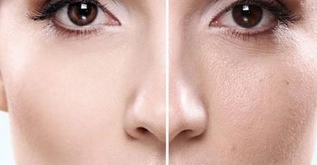 منافذ 460x240 - منافذ باز پوست خود را مدیریت کنیم !
