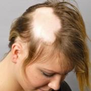 مو 1 180x180 - درمان آلوپسی یونیورسالیس