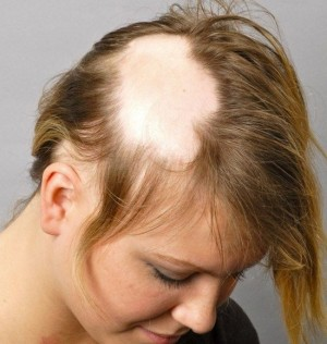 مو 1 300x316 - درمان آلوپسی یونیورسالیس