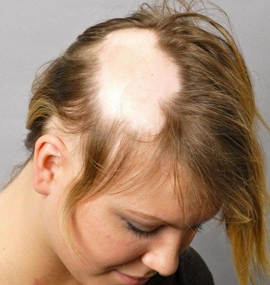 مو 1 - درمان آلوپسی یونیورسالیس