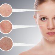 وووو 2 180x180 - چگونه بفهمیم پوستمان چرب است؟