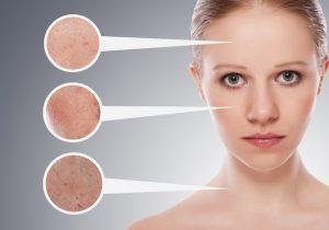 وووو 2 300x210 - چگونه بفهمیم پوستمان چرب است؟