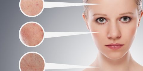 وووو 2 480x240 - چگونه بفهمیم پوستمان چرب است؟