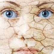 پوست خشک 180x180 - با پوست خشک ام چه کنم؟ (1)