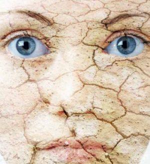 پوست خشک 300x329 - با پوست خشک ام چه کنم؟ (1)